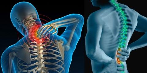 Thoát vị đĩa đệm đau thần kinh tọa và nguyên nhân